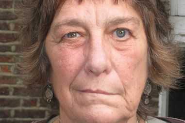 Woman suffering with Bell's Palsy